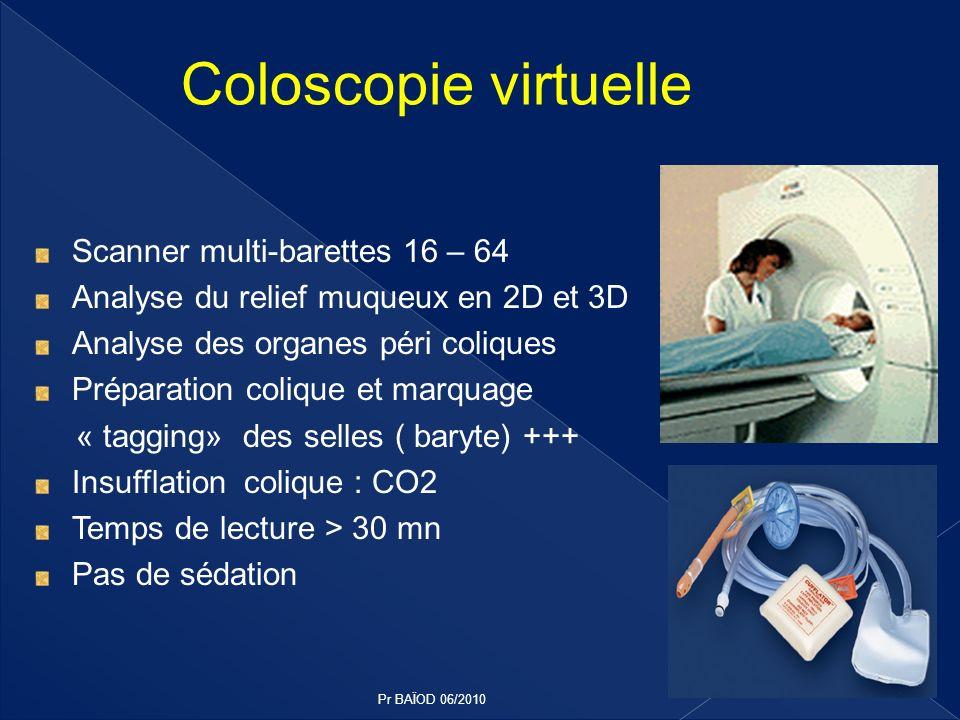 Coloscopie virtuelle Scanner multi-barettes 16 – 64