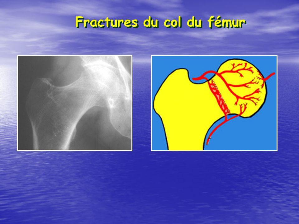 Fractures du col du fémur
