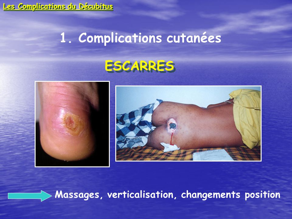 1. Complications cutanées