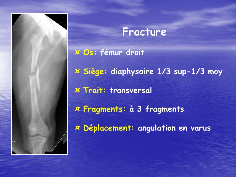 Fracture ¤ Os: fémur droit ¤ Siège: diaphysaire 1/3 sup-1/3 moy
