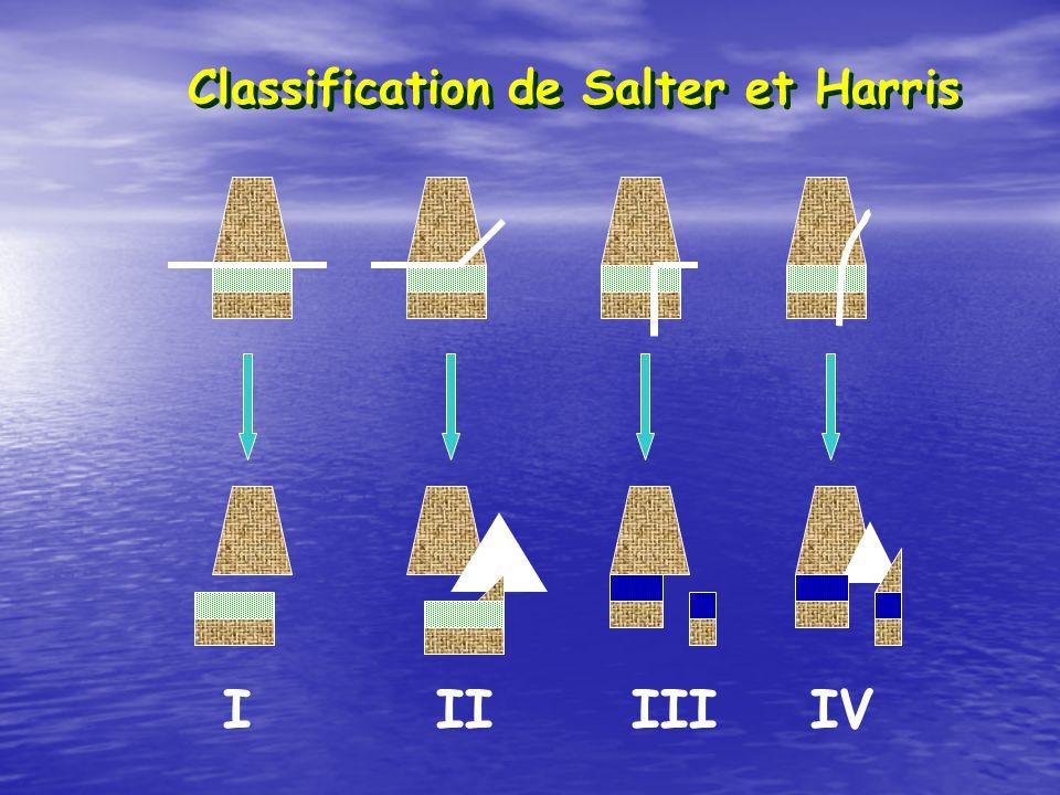 Classification de Salter et Harris