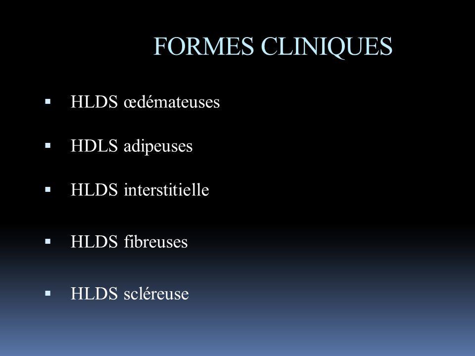 FORMES CLINIQUES HLDS œdémateuses HDLS adipeuses HLDS interstitielle