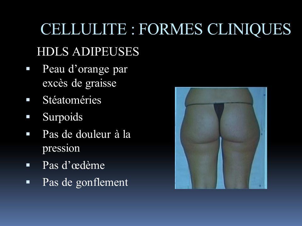 CELLULITE : FORMES CLINIQUES