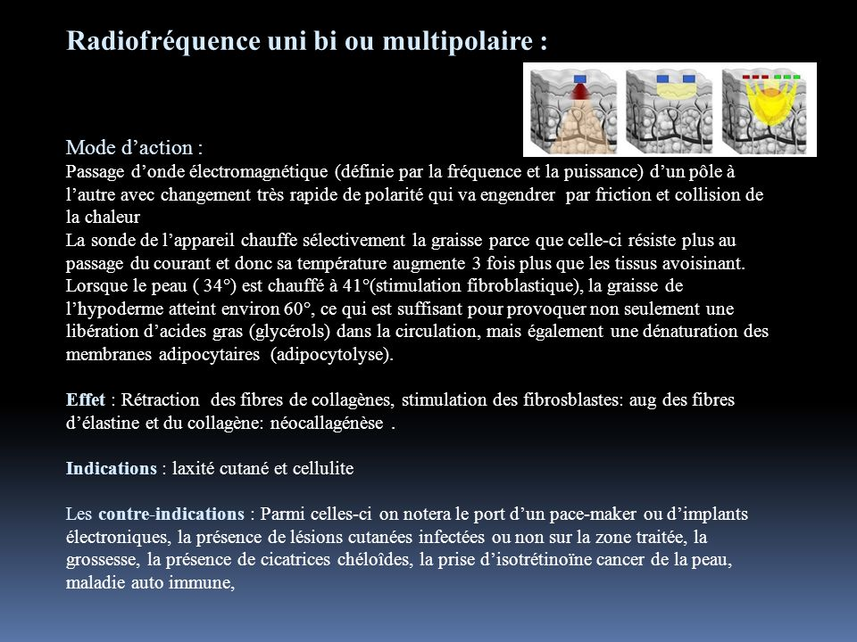 Radiofréquence uni bi ou multipolaire :