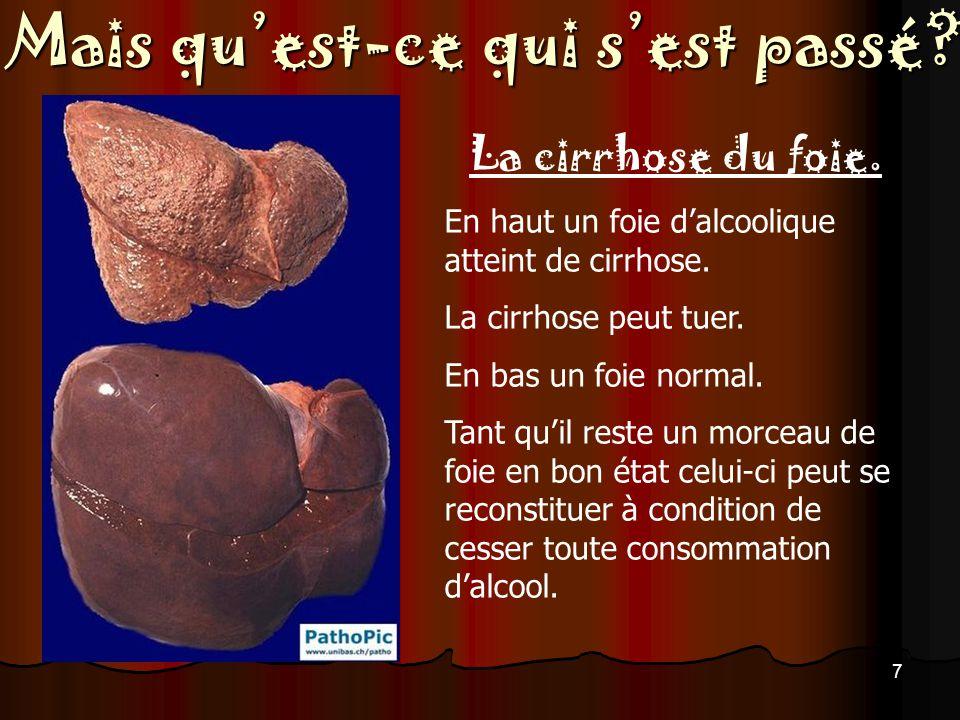 La cirrhose du foie. En haut un foie d'alcoolique atteint de cirrhose.