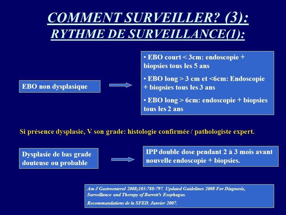 COMMENT SURVEILLER (3): RYTHME DE SURVEILLANCE(1):