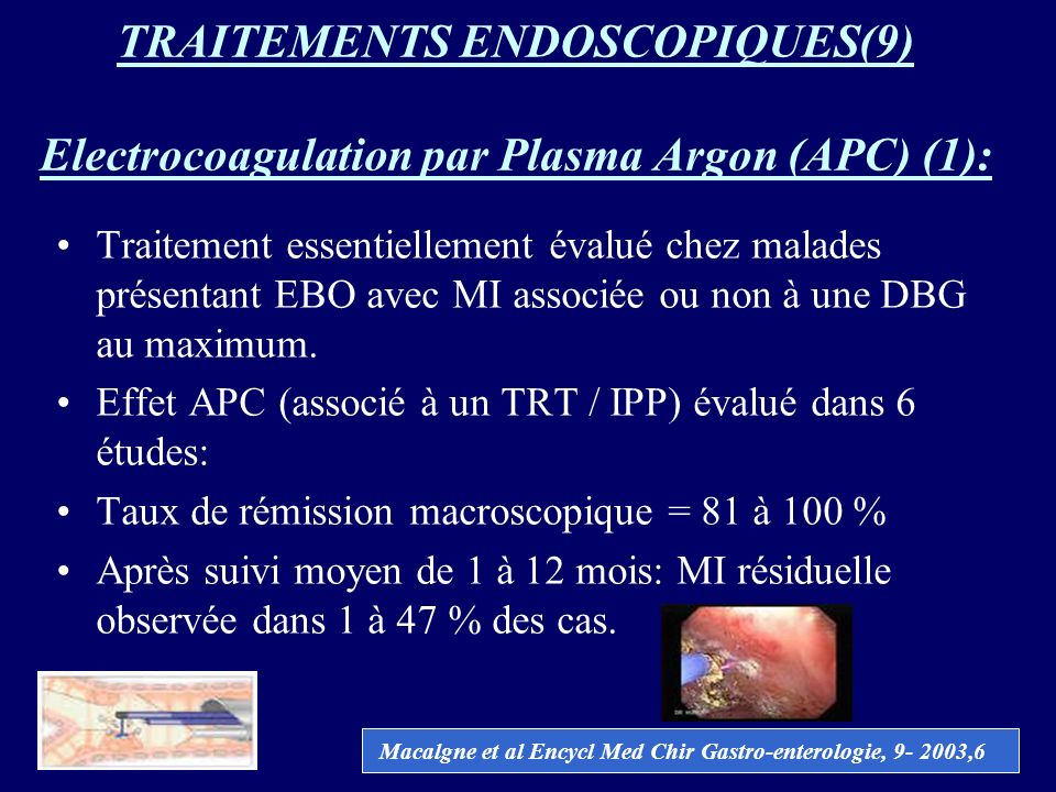 TRAITEMENTS ENDOSCOPIQUES(9) Electrocoagulation par Plasma Argon (APC) (1):