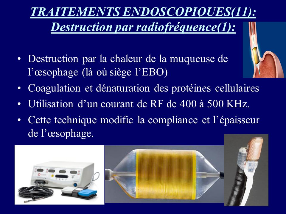 TRAITEMENTS ENDOSCOPIQUES(11): Destruction par radiofréquence(1):