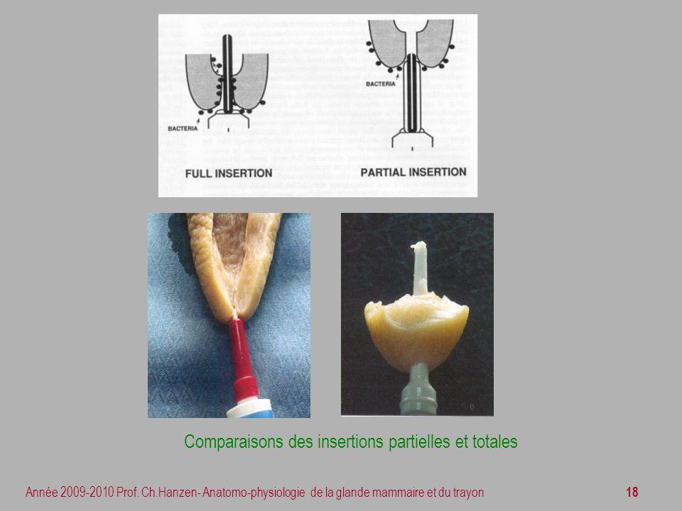 Comparaisons des insertions partielles et totales