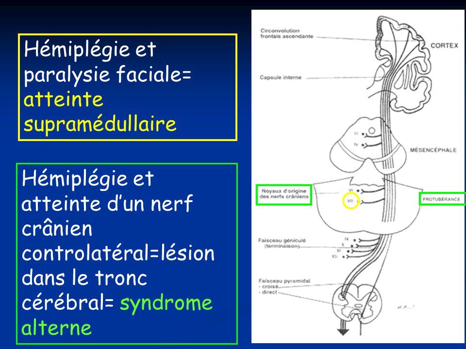 Hémiplégie et paralysie faciale= atteinte supramédullaire