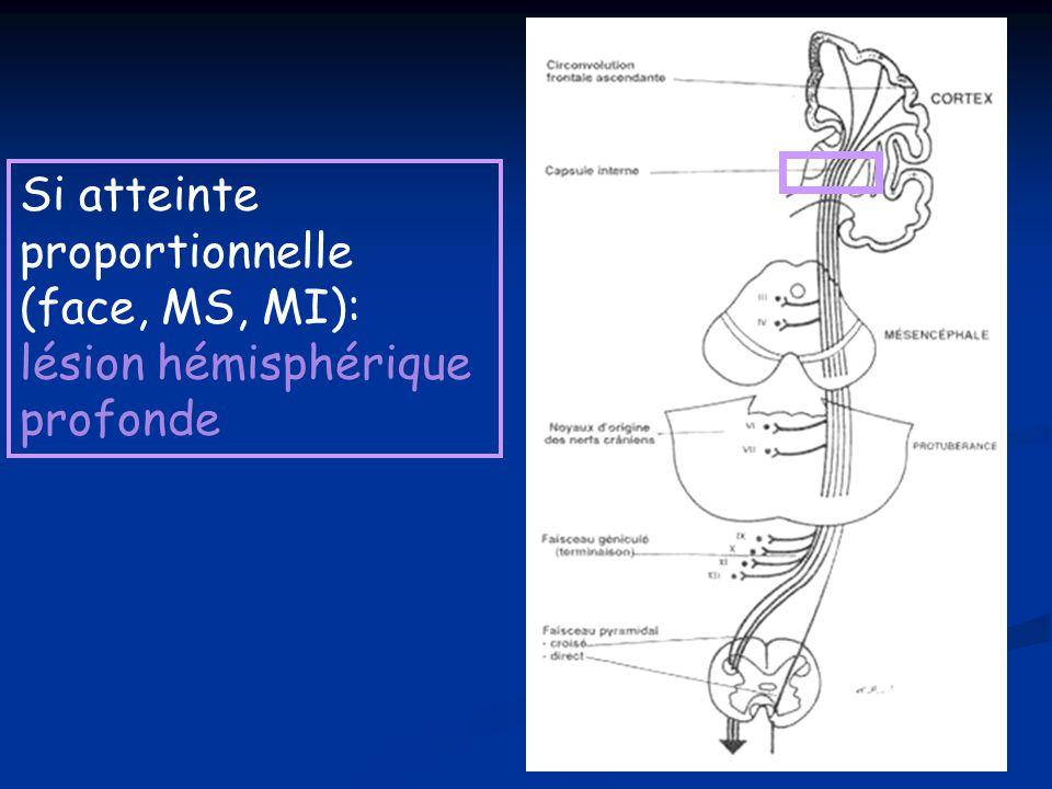Si atteinte proportionnelle (face, MS, MI): lésion hémisphérique profonde