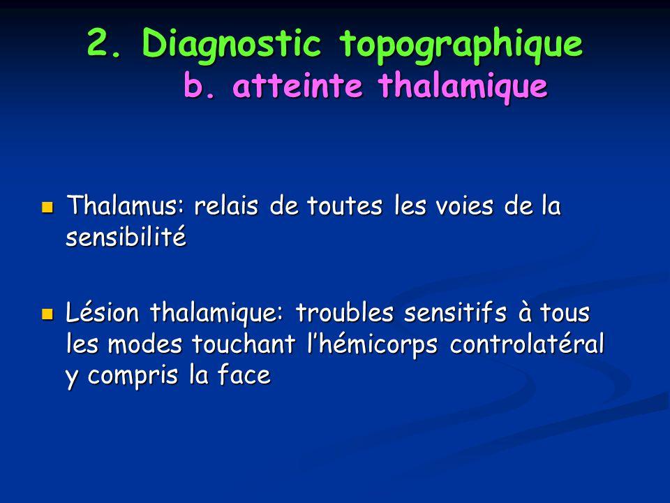 2. Diagnostic topographique b. atteinte thalamique