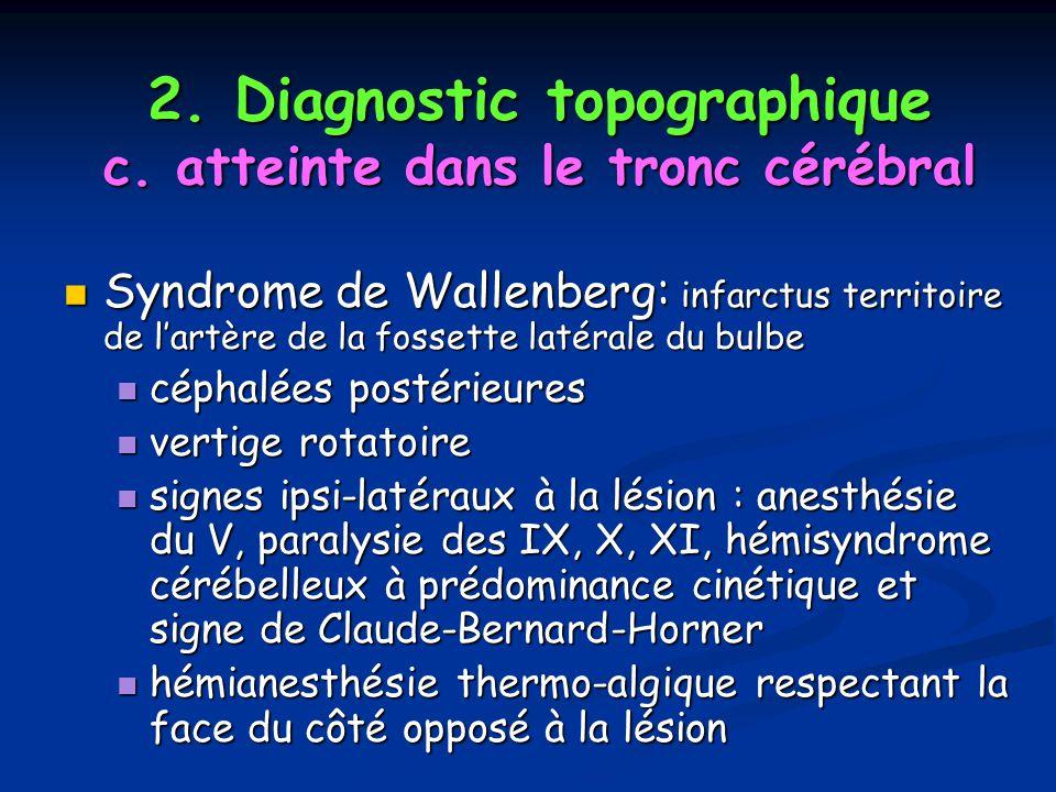 2. Diagnostic topographique c. atteinte dans le tronc cérébral