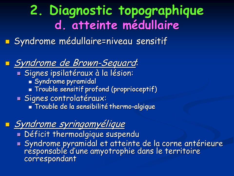 2. Diagnostic topographique d. atteinte médullaire