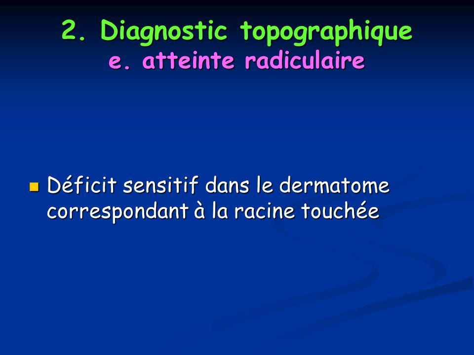 2. Diagnostic topographique e. atteinte radiculaire
