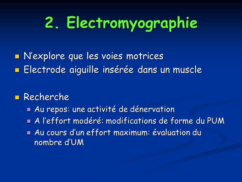 2. Electromyographie N'explore que les voies motrices