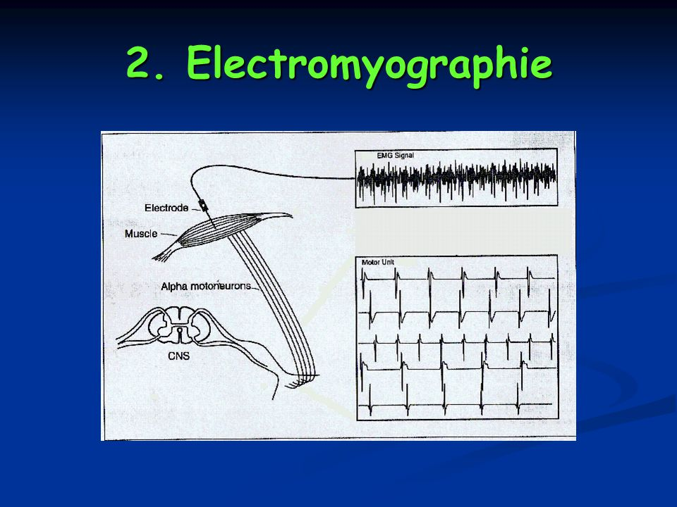 2. Electromyographie