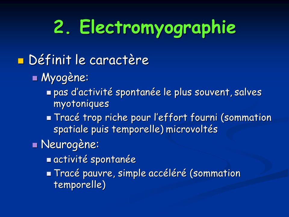 2. Electromyographie Définit le caractère Myogène: Neurogène: