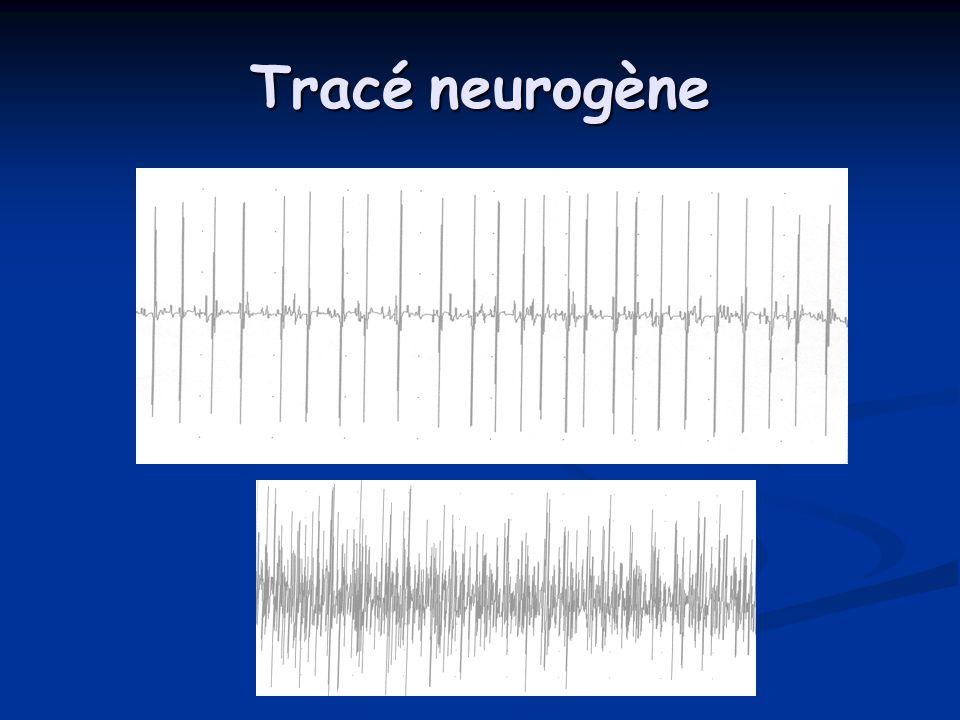 Tracé neurogène