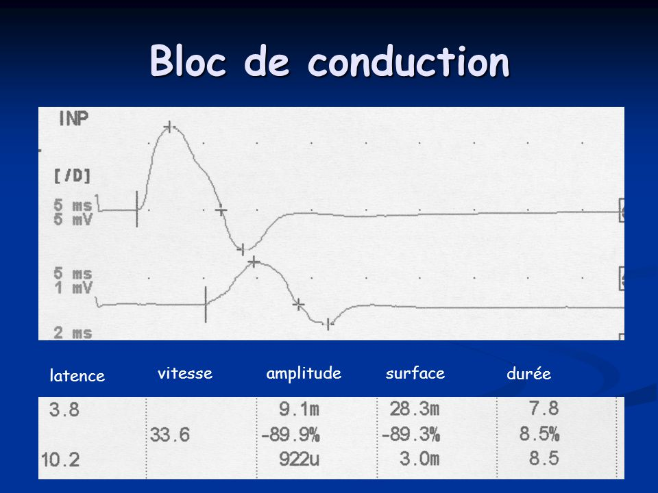 Bloc de conduction latence vitesse amplitude surface durée