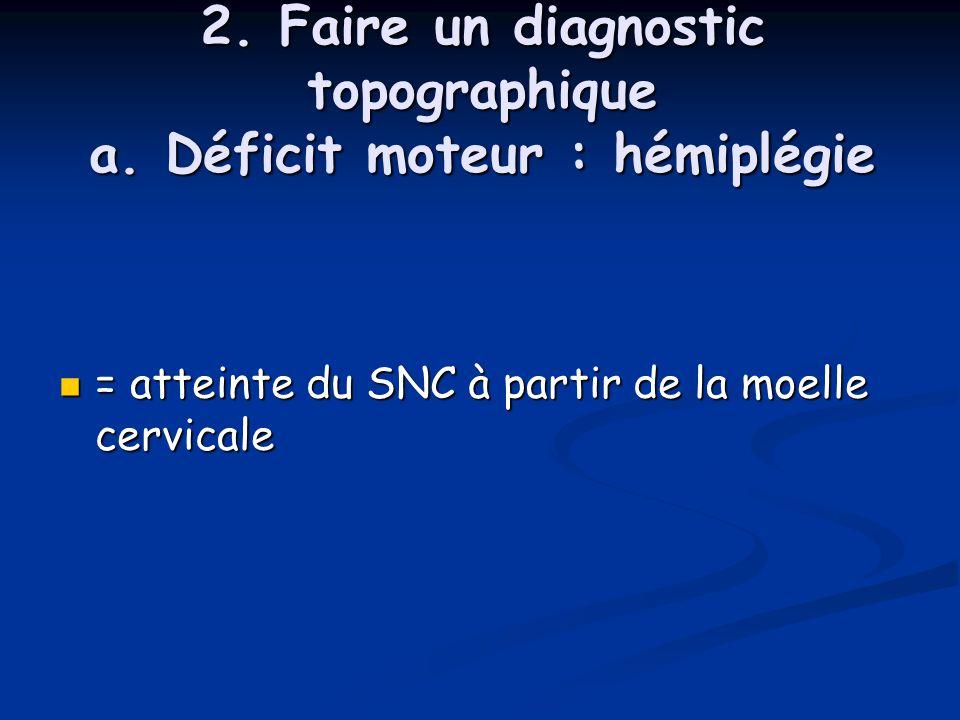 2. Faire un diagnostic topographique a. Déficit moteur : hémiplégie