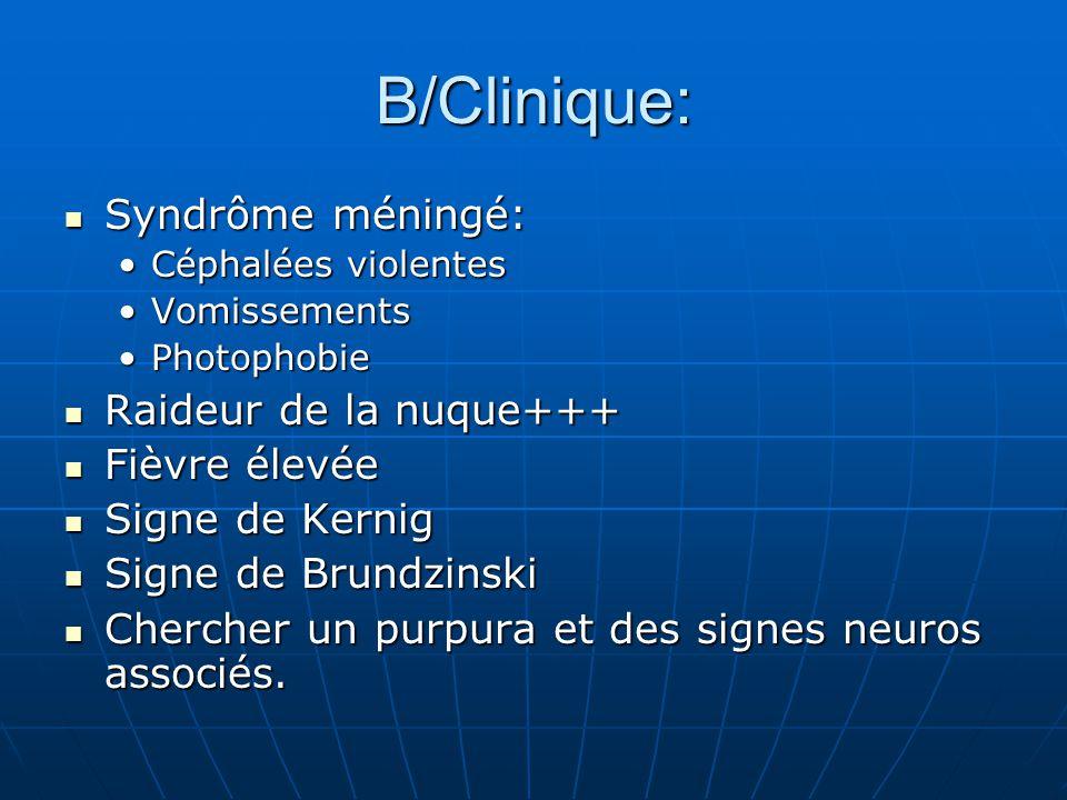 B/Clinique: Syndrôme méningé: Raideur de la nuque+++ Fièvre élevée