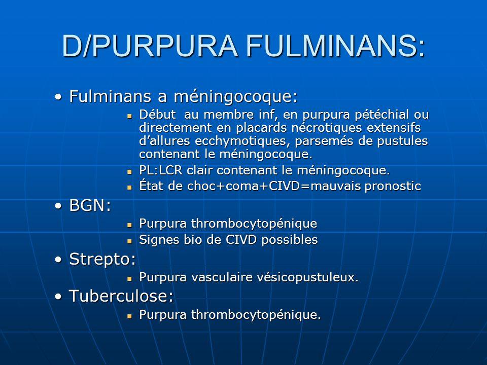 D/PURPURA FULMINANS: Fulminans a méningocoque: BGN: Strepto: