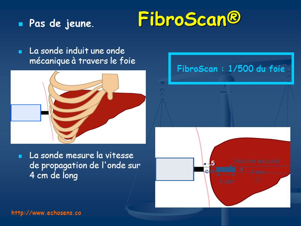 FibroScan® Pas de jeune.