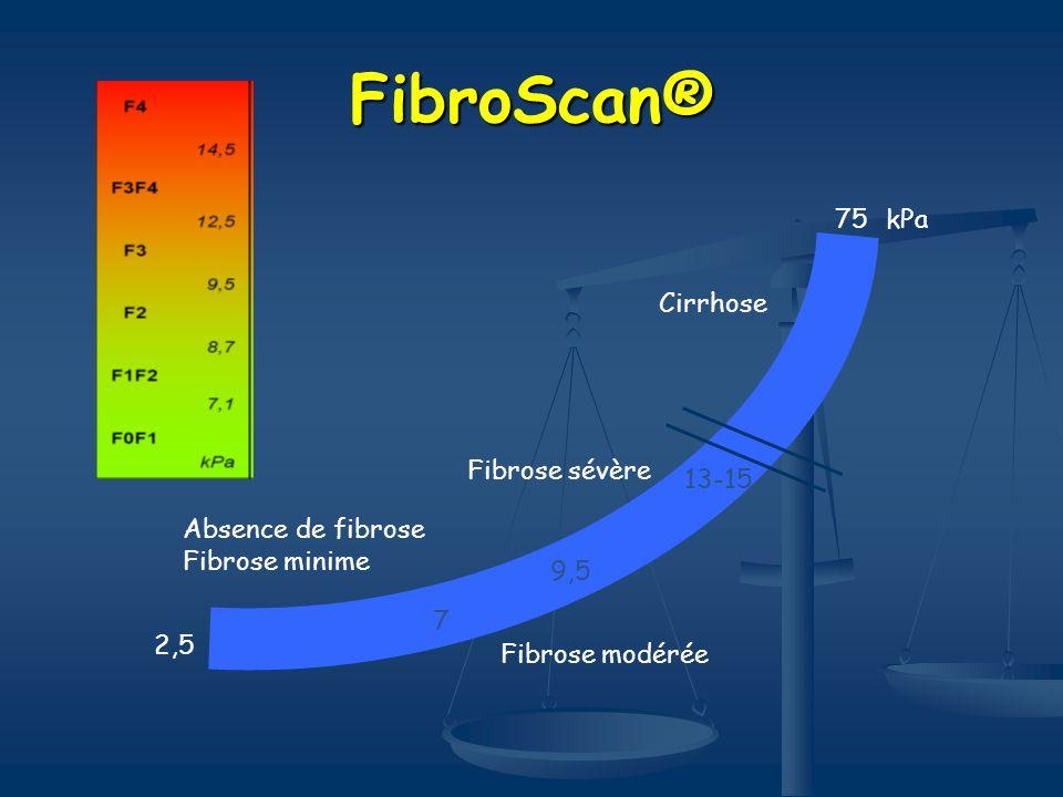 FibroScan® 75 kPa Cirrhose Fibrose sévère 13-15 Absence de fibrose