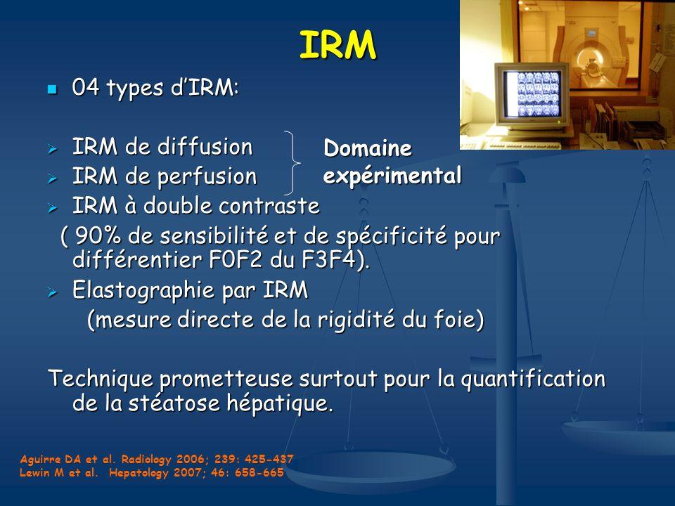 IRM 04 types d'IRM: IRM de diffusion IRM de perfusion