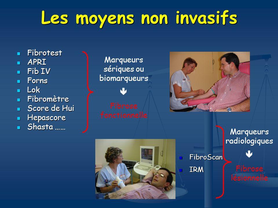 Les moyens non invasifs