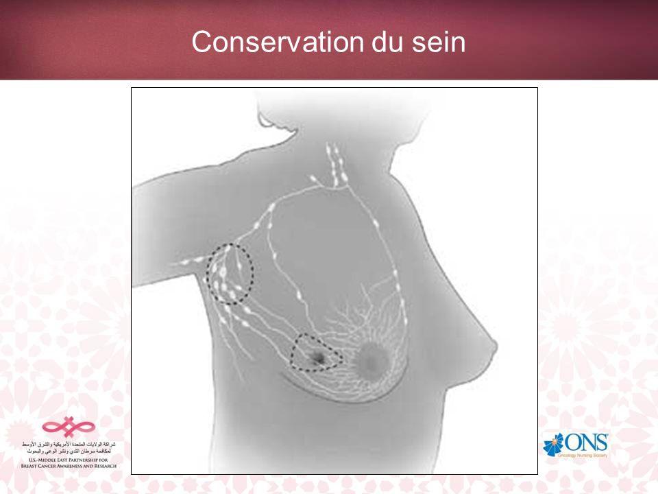 Conservation du sein