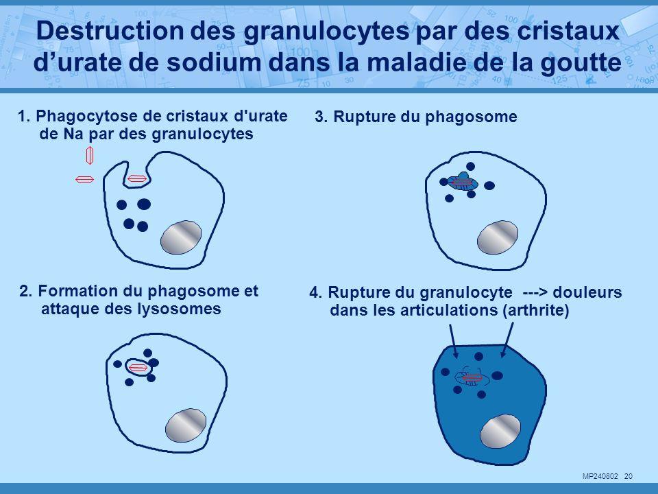 Destruction des granulocytes par des cristaux d'urate de sodium dans la maladie de la goutte