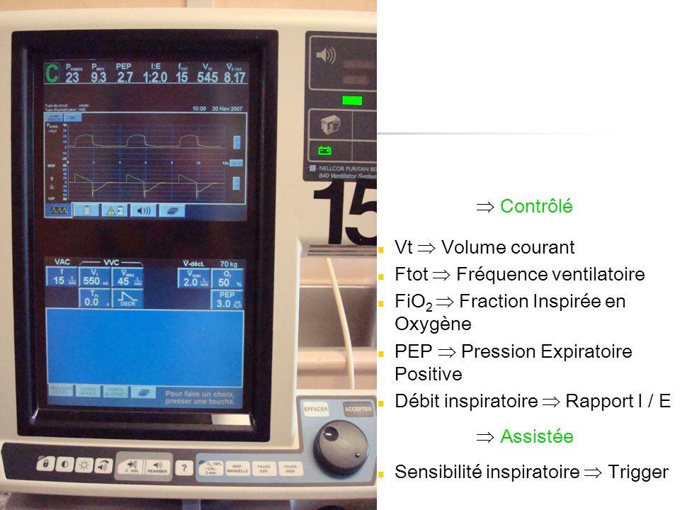  Contrôlé Vt  Volume courant. Ftot  Fréquence ventilatoire. FiO2  Fraction Inspirée en Oxygène.