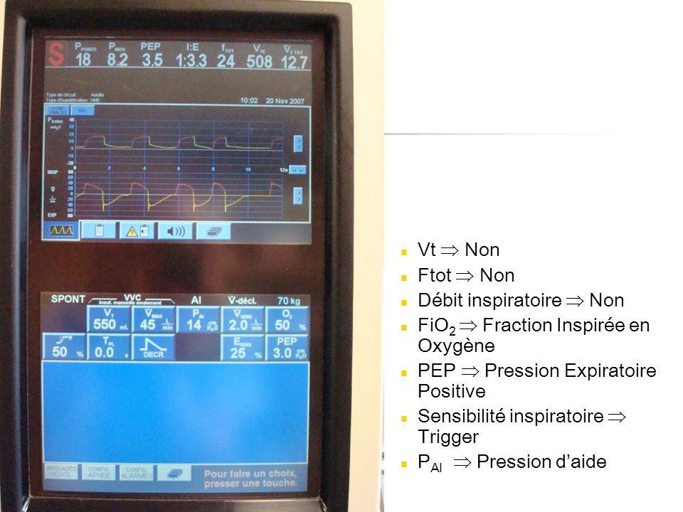 Vt  Non Ftot  Non. Débit inspiratoire  Non. FiO2  Fraction Inspirée en Oxygène. PEP  Pression Expiratoire Positive.