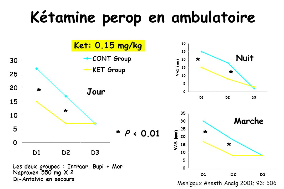 Kétamine perop en ambulatoire