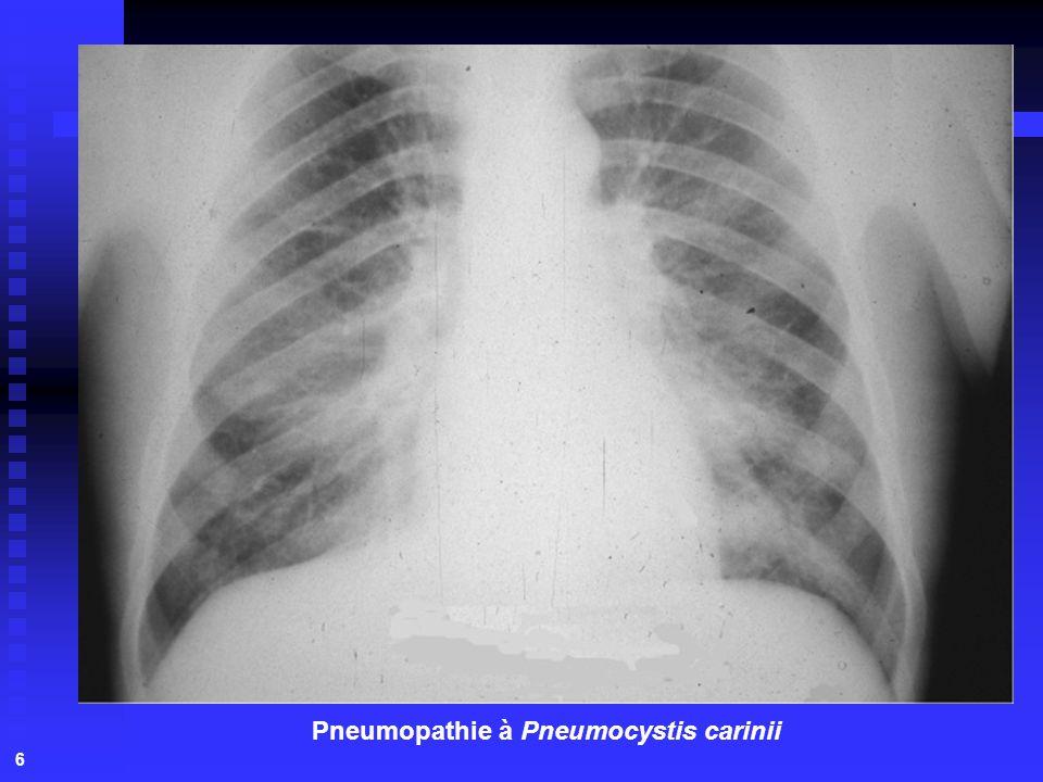 Pneumopathie à Pneumocystis carinii