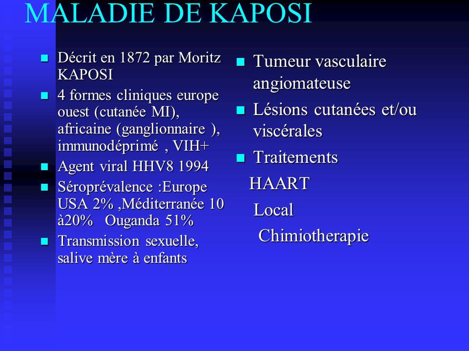 MALADIE DE KAPOSI Tumeur vasculaire angiomateuse