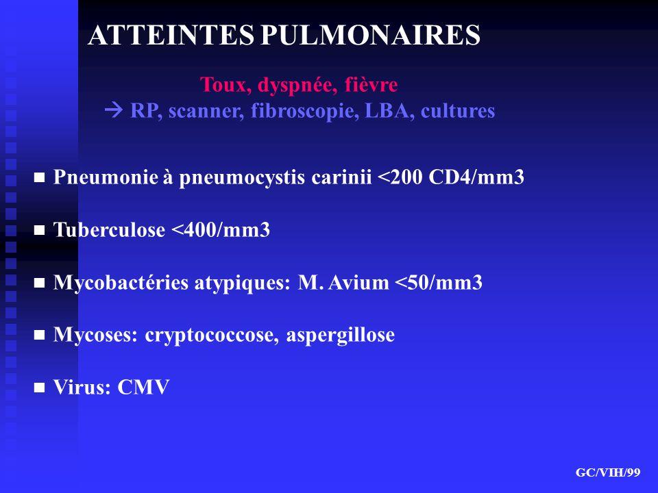  RP, scanner, fibroscopie, LBA, cultures