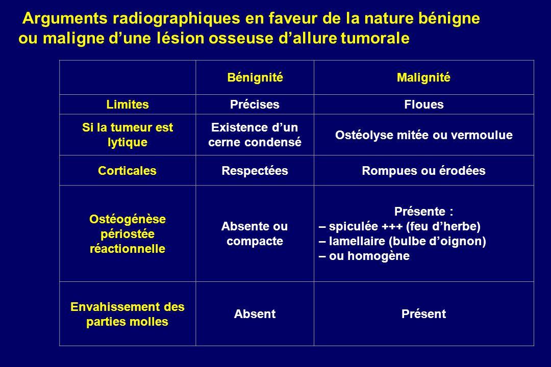 Arguments radiographiques en faveur de la nature bénigne ou maligne d'une lésion osseuse d'allure tumorale