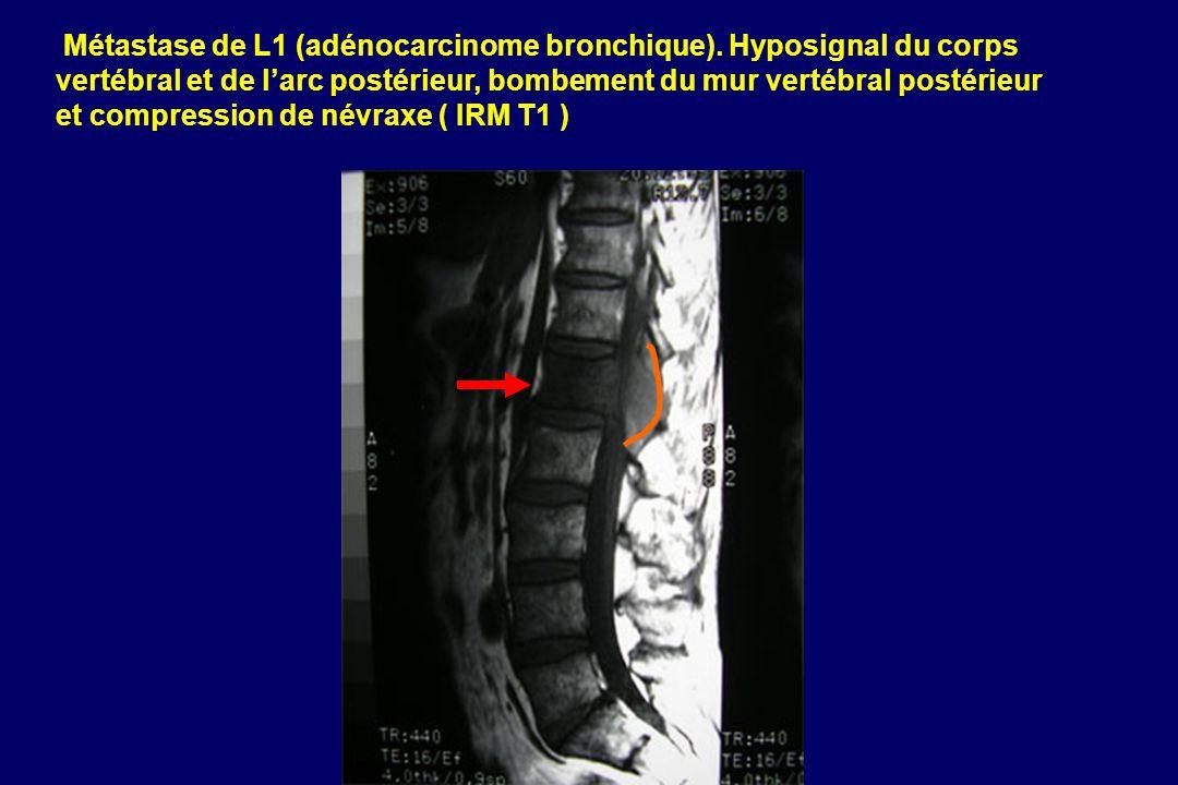 Métastase de L1 (adénocarcinome bronchique)