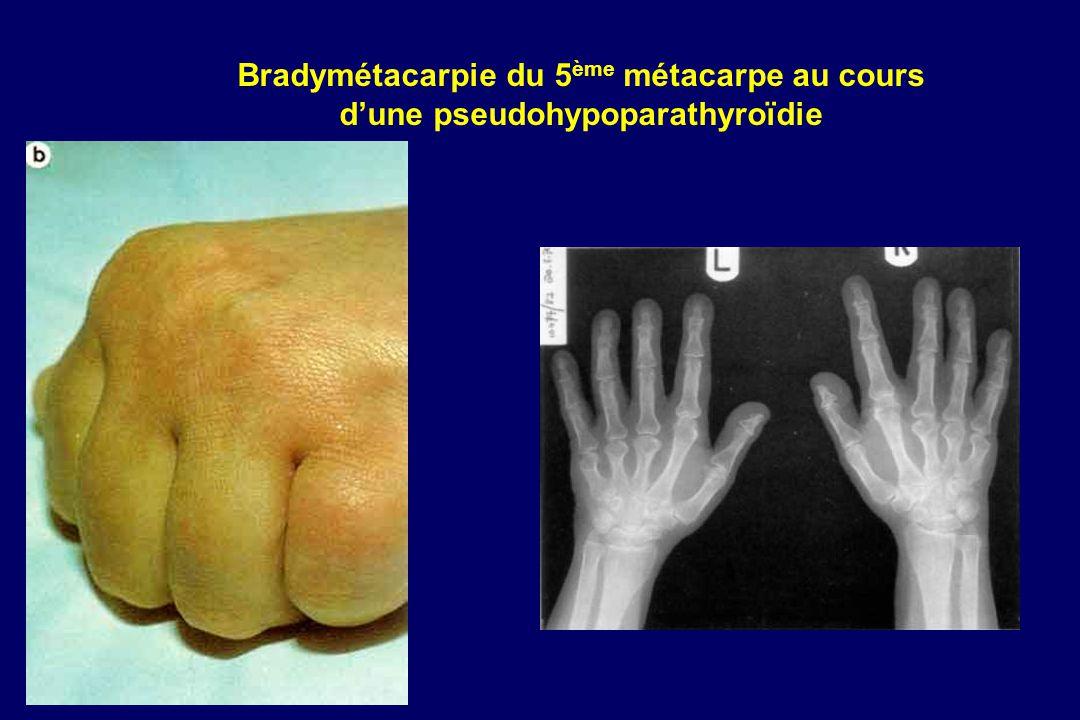 Bradymétacarpie du 5ème métacarpe au cours d'une pseudohypoparathyroïdie