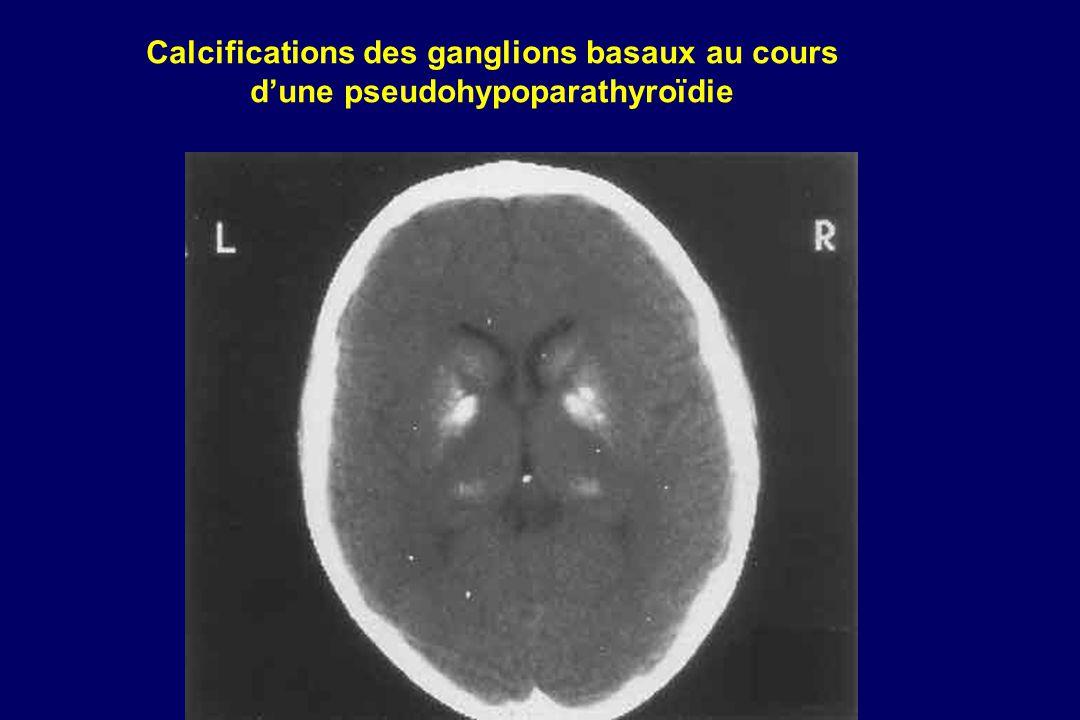 Calcifications des ganglions basaux au cours d'une pseudohypoparathyroïdie