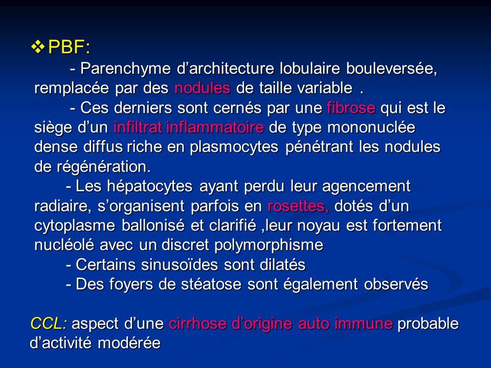 PBF: - Parenchyme d'architecture lobulaire bouleversée,