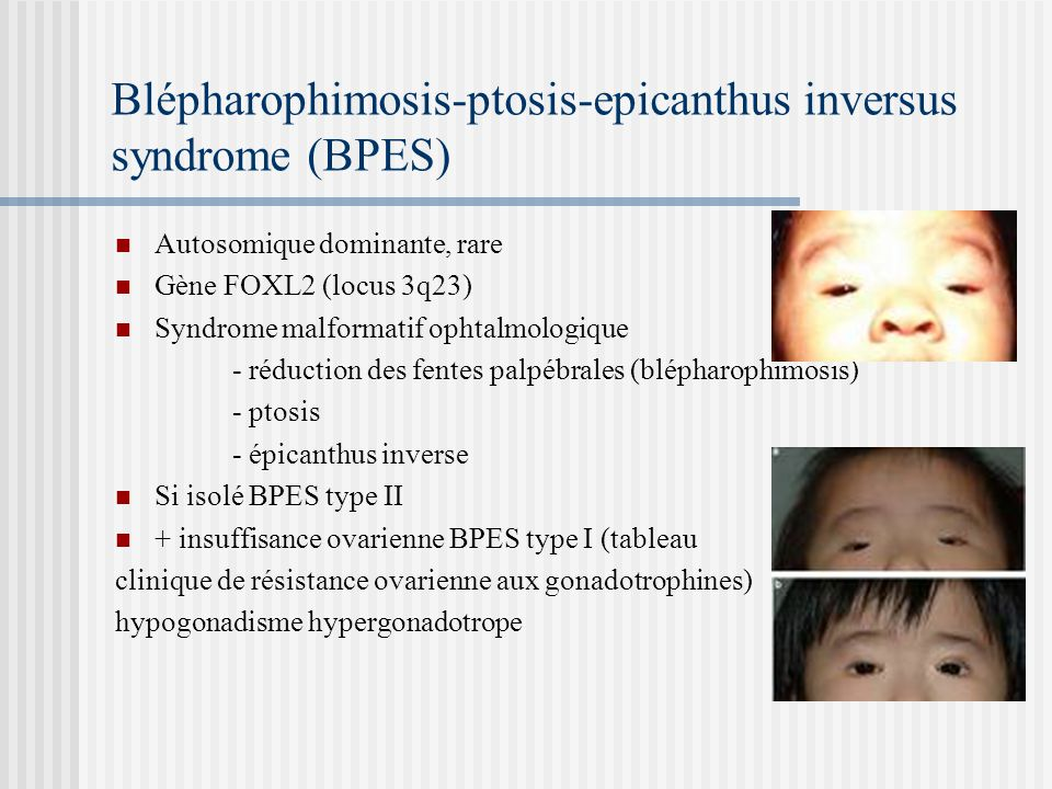 Blépharophimosis-ptosis-epicanthus inversus syndrome (BPES)