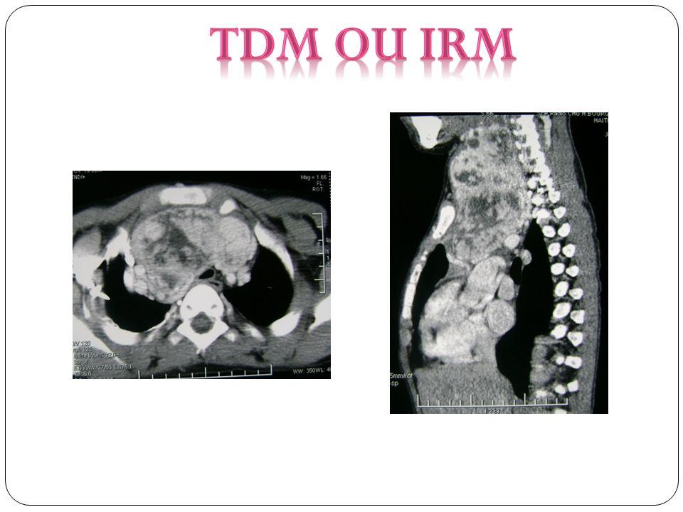 TDM ou IRM