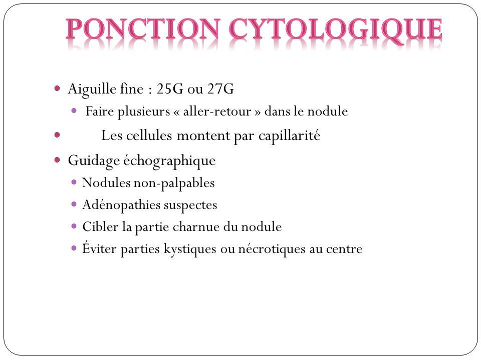 Ponction cytologique Aiguille fine : 25G ou 27G