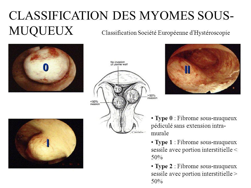 CLASSIFICATION DES MYOMES SOUS-MUQUEUX Classification Société Européenne d'Hystéroscopie