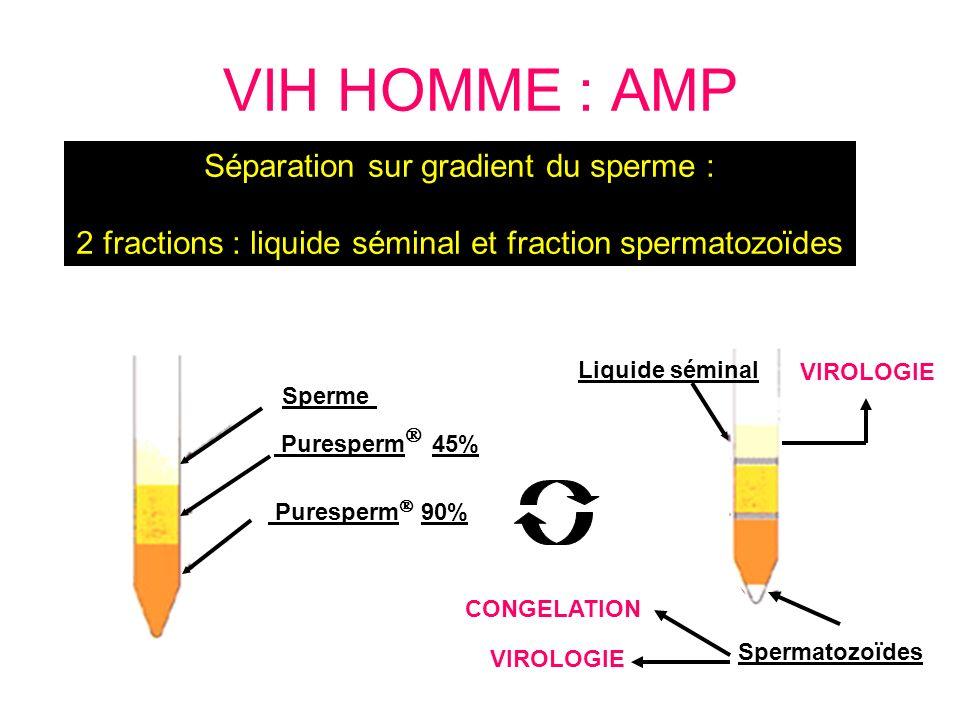 VIH HOMME : AMP Séparation sur gradient du sperme :