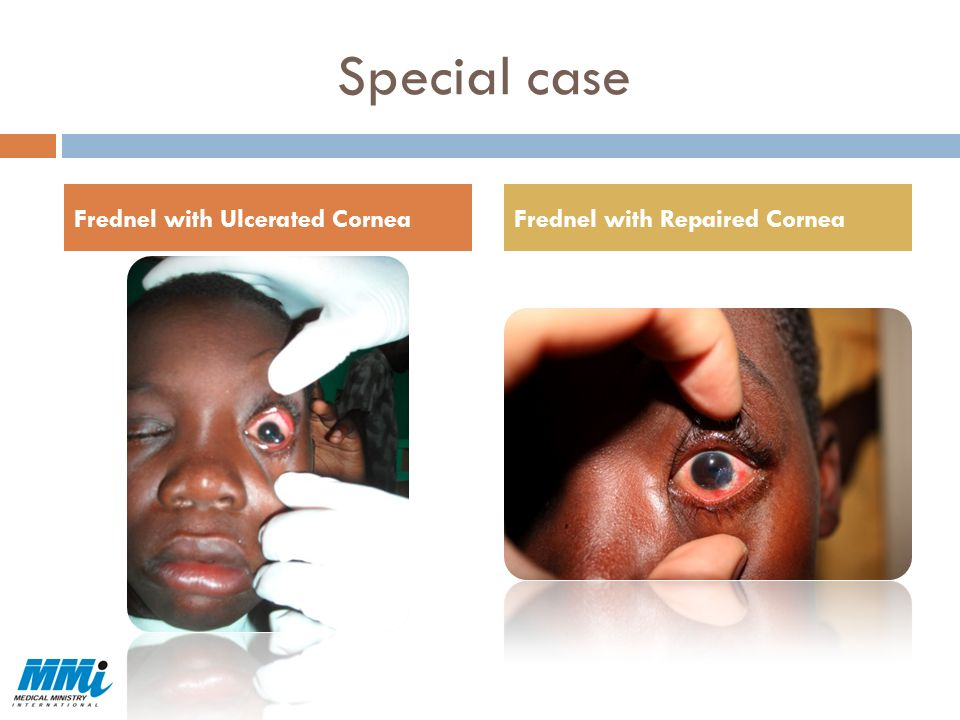 Special case Frednel with Ulcerated Cornea